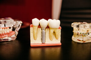 Implants - Pine Valley Family Dentistry